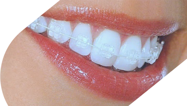 Invisible Braces | Highland Orthodontic Practice, Inverness